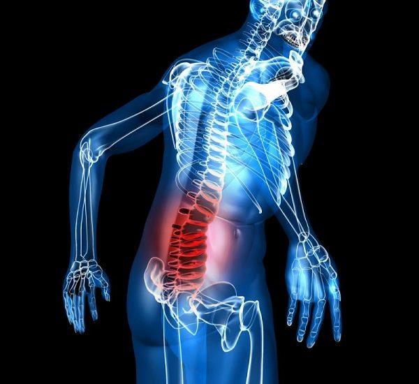 Đau xương là một trong những triệu chứng ung thư di căn đến xương điển hình nhất