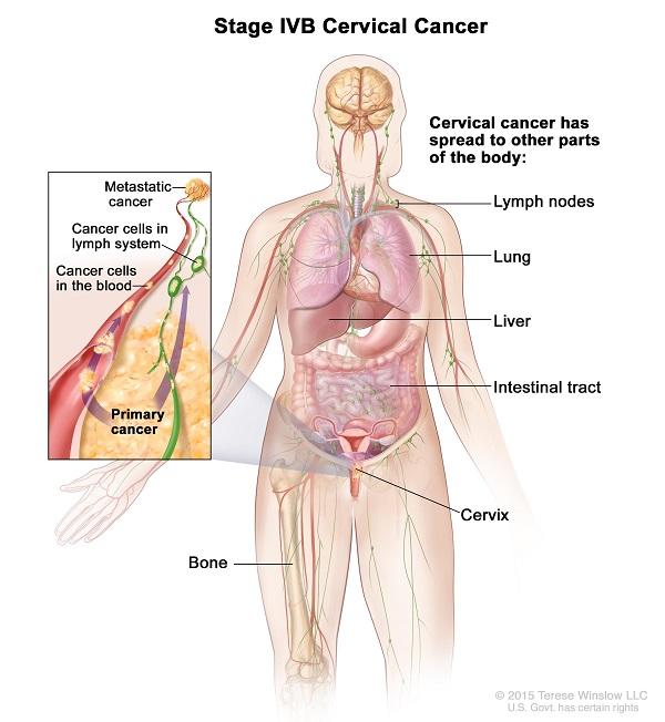 Ung thư cổ tử cung giai đoạn cuối có khả năng di căn đến nhiều cơ quan ở xa, trong đó có xương