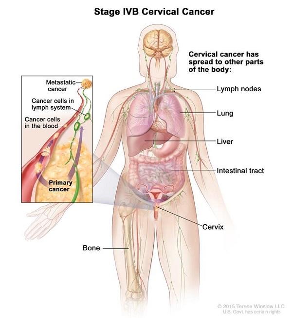 Tiên lượng sống cho bệnh nhân ung thư giai đoạn cuối còn phụ thuộc nhiều yếu tố