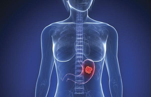 Tầm soát ung thư dạ dày bao nhiêu tiền?