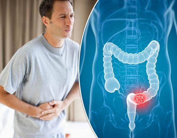Ung thư đại trực tràng và viêm đại tràng