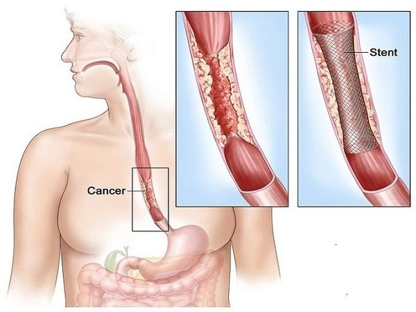 Đặt stent có thể giúp bệnh nhân sống dễ chịu hơn, ăn uống được qua đường miệng, nâng cao chất lượng cuộc sống cuối dời cho bệnh nhân