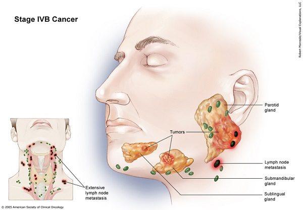 Giai đoạn tiến triển bệnh là một trong những yếu tố quan trọng quyết định ung thư tuyến nước bọt có chữa được không