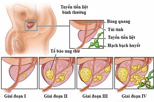Ung thư tuyến tiền liệt giai đoạn III