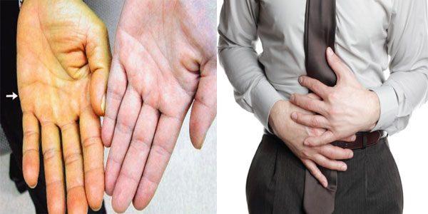 Ung thư vòm họng di căn đến gan gây ra một loạt các biểu hiện như ung vàng da, đau tức bụng trên...