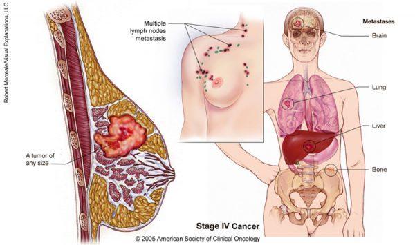Ung thư vú giai đoạn cuối có khả năng di căn đến nhiều cơ quan ở xa