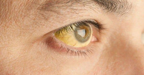 Vàng da, vàng mắt là một trong những biểu hiện thường gặp ở người mắc viêm gan B
