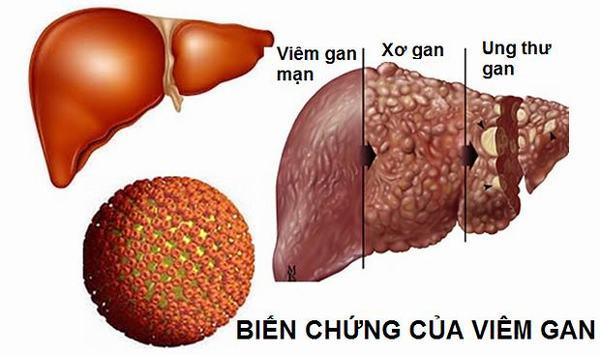 Xơ gan, ung thư gan... là những biến chứng nguy hiểm của bệnh viêm gan B