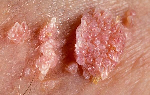 Sùi mào gà là tên gọi một loại bệnh lây truyền qua đường tình dục, do virut HPV gây nên