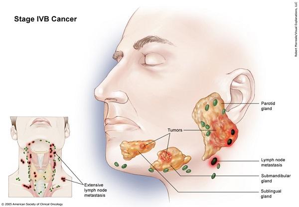 Ung thư tuyến nước bọt chỉ chiếm khoảng 2 – 4% số ca mắc ung thư vùng đầu cổ