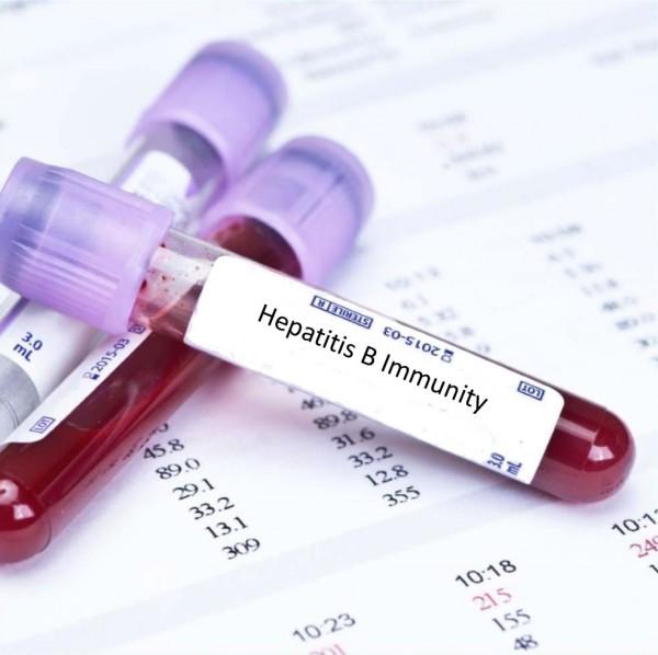 Cách điều trị viêm gan B như thế nào