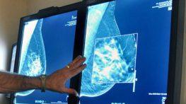 Chụp X-quang tuyến vú bao nhiêu tiền?
