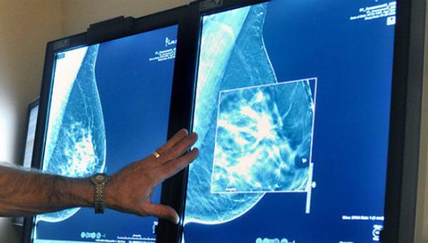 Chụp X-quang tuyến vú là một phương pháp thăm khám hiệu quả giúp phát hiện những bất thường ở tuyến vú