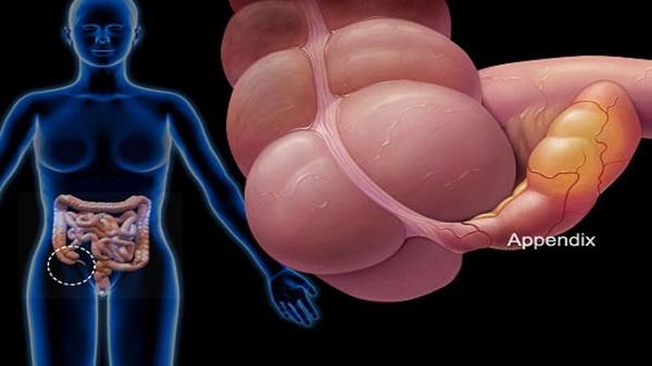 Dấu hiệu bệnh ung thư đại tràng giai đoạn cuối