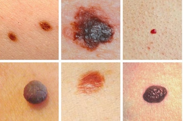 Dấu hiệu của bệnh ung thư da là gì