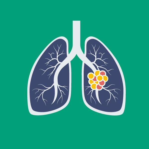 Đau vai dấu hiệu của ung thư phổi.