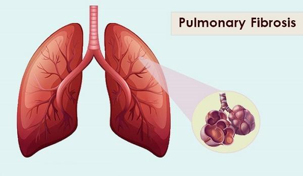 Điều trị bệnh xơ phổi thế nào?
