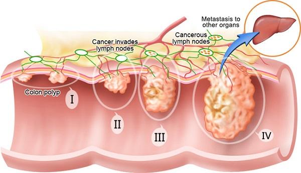 Các giai đoạn tiến triển ung thư đại tràng