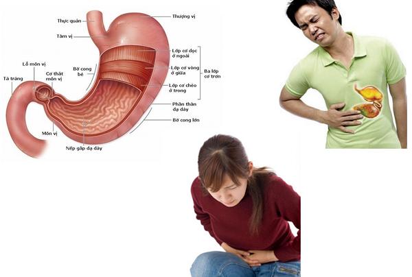 Điều trị viêm loét dạ dày thế nào hiệu quả là thắc mắc được nhiều người quan tâm, tìm hiểu