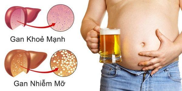 Gan nhiễm mỡ là bệnh thường gặp có nguyên nhân do rượu bia