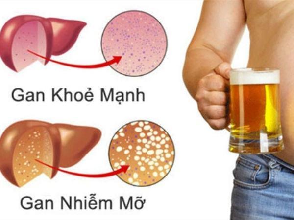 Gan nhiễm mỡ phần lớn là do bia rượu