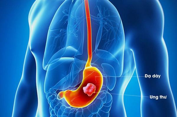Giai đoạn ung thư dạ dày ai cũng cần biết