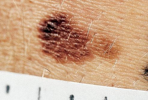 Hình ảnh nốt ruồi gây ung thư có màu sắc bất thường