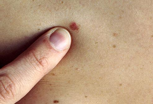 Hình ảnh nốt ruồi ung thư là gì