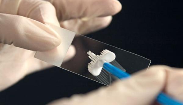 Pap smear phát hiện những bất thường sớm ở cổ tử cung
