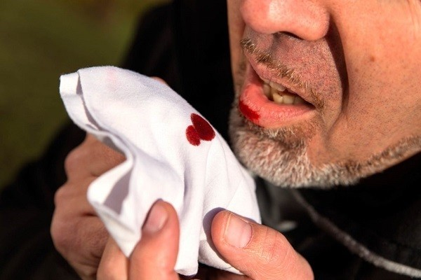 Ho ra máu cũng là biểu hiện thường gặp ở bệnh nhân ung thư phổi