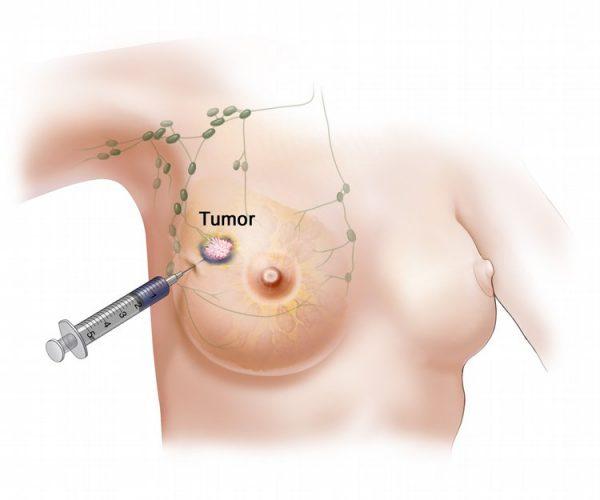 Các triệu chứng của khối u diệp thể khá giống với u xơ vú