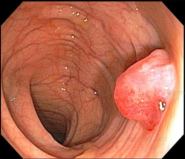 Nội soi trực tràng phát hiện được các polyp và loại bỏ ngăn ngừa ung thư