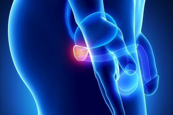 Điều trị ung thư tiền liệt tuyến như thế nào phụ thuộc vào nhiều yếu tố