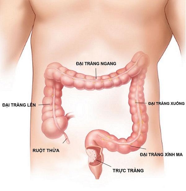 Ung thư trực tràng là bệnh ung thư đường tiêu hóa dưới phổ biến