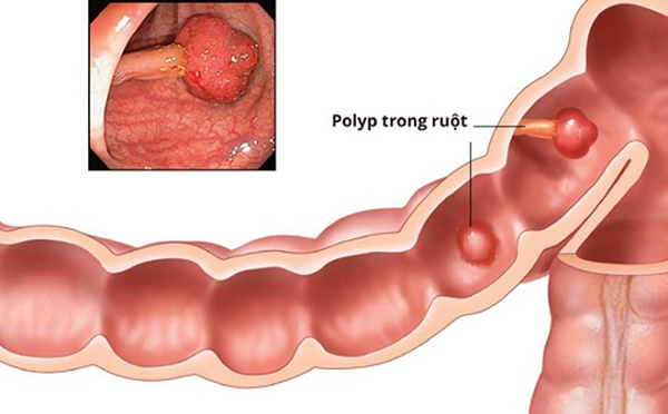 Polyp đại tràng là bệnh gì