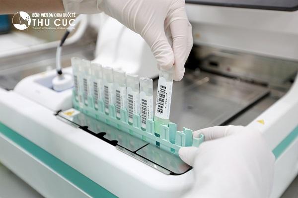 Xét nghiệm máu trong phân là xét nghiệm quan trọng trong tầm soát ung thư trực tràng trong cộng đồng