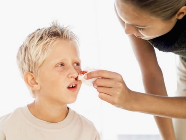 Chảy máu cam (chảy máu mũi) xảy ra khi các mạch máu mũi bị tổn thương