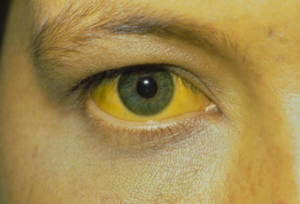 gan bị rối loạn chức năng và có nó không thể ức chế được lượng bilirubin, gây nên tình trạng vàng da