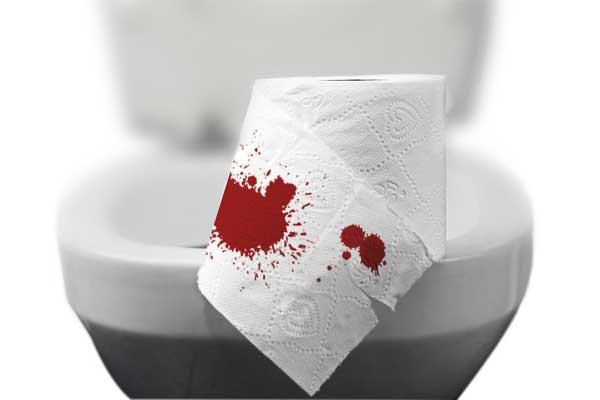 Máu thường màu đỏ tươi, loang thành vệt trên khuôn phân hay thấy ở giấy vệ sinh khi đi ngoài