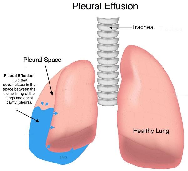 Tràn dịch màng phổi là tình trạng có nhiều dịch hơn bình thường trong khoang màng phổi