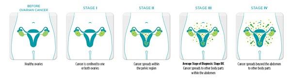 Ung thư buồng trứng giai đoạn III