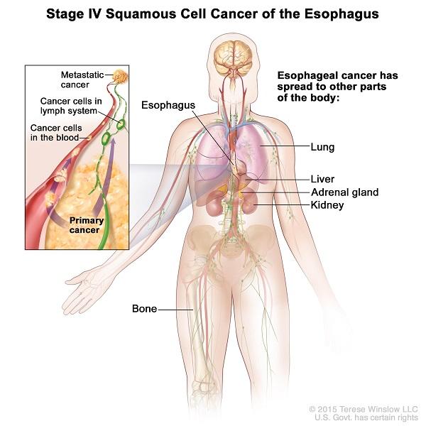 Ung thư thực quản giai đoạn cuối có khả năng di căn đến nhiều cơ quan ở xa.