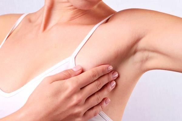 Khối u vú là một trong những triệu chứng điển hình nhất ở bệnh nhân ung thư vú
