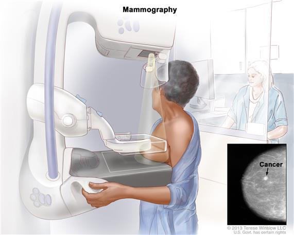 Chụp X-quang tuyến vú phát hiện u xơ vú