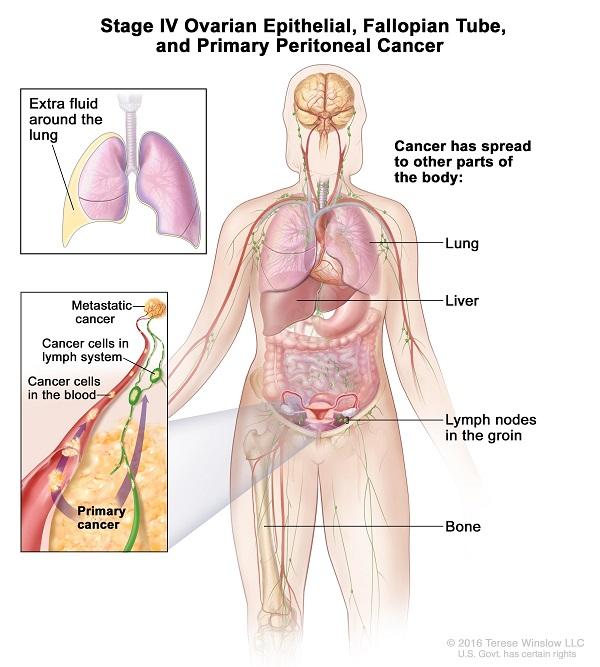 Ung thư buồng trứng giai đoạn cuối có thể di căn đến các cơ quan như phổi, xương, gan...