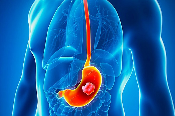 Ung thư dạ dày giai đoạn cuối có khả năng di căn rộng đến các cơ quan ở xa