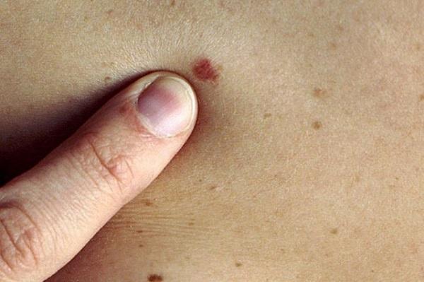Ung thư da đang có xu hướng gia tăng ở Việt Nam