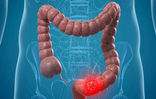Ung thư đại tràng giai đoạn cuối sống được bao lâu?