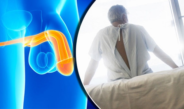 Ung thư dương vật là một trong những bệnh ung thư thường gặp ở nam giới, đặc biệt là các nước kém phát triển