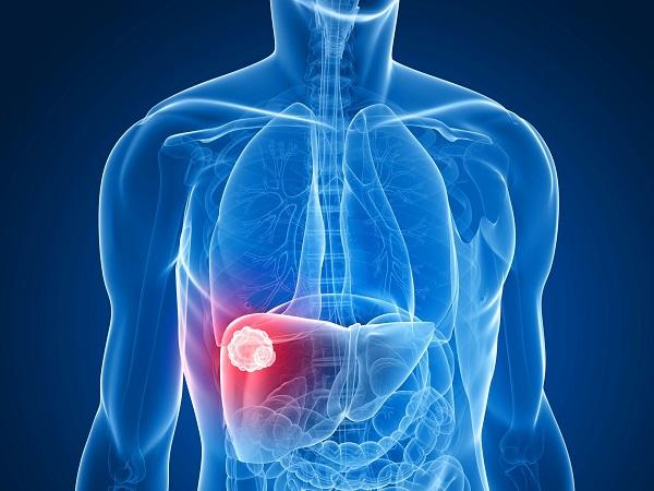 Ung thư gan nếu không được phát hiện, điều trị sớm có thể di căn rộng đến các cơ quan ở xa